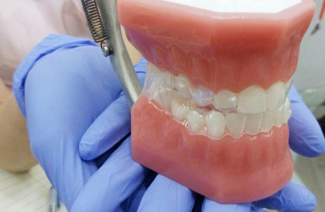 高雄隱適美 | 林語堂牙醫診所 | 隱形牙套推薦 | 為兒子臉型咬合的未來著想
